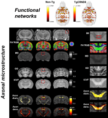 Microstructure mapping in rodent brain using high angular resolution diffusion MRI (HARDI) with 8 shells. Acquisition strategy allows the quantitative mapping of orientation dispersion (OD), neurite density (ICVF), axon diameter and density, along with standard fractional anisotropy (FA)